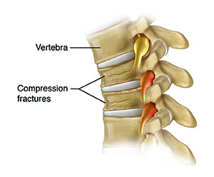 Side view of four vertebrae and disks showing compression fractures.