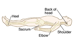 Common sites of pressure ulcers when lying on the back include the heel, sacrum, elbow, shoulder, and the back of head.